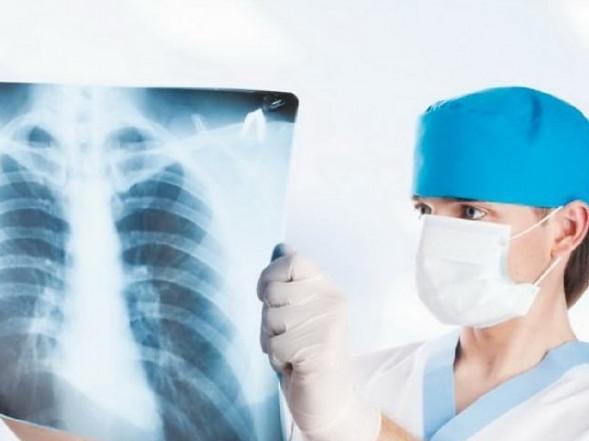 У Турійському районі реєструють значний ріст захворюваності на туберкульоз
