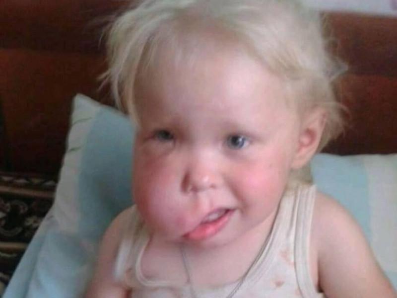 Дитя постраждало через халатність батьків